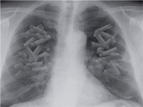 ¿Fumas? Es que me ha llegado tu radiografía
