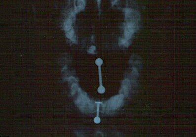 Radiografías de piercings